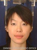 顎偏位(治療後顔面)
