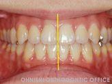 顎偏位(治療後口腔内)
