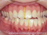 顎偏位(治療前口腔内)