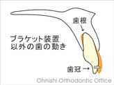 ブラケット装置以外の歯の動き