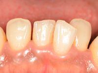 前歯部研磨後
