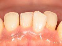 前歯部研磨前