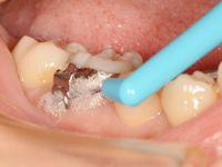 歯間ブラシその2-2