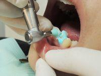 前歯部研磨