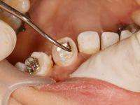 下顎DBS犬歯