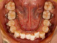 下顎DBS後下顎2