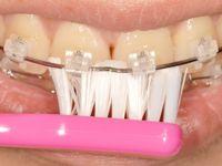 歯磨き2-2
