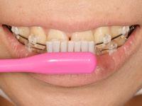 歯磨き5-2