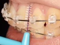 歯間ブラシ使い方大