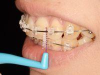 歯間ブラシ使い方