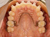 下顎DBS上顎2