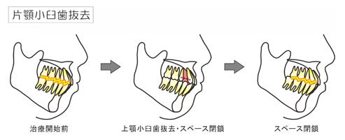 片顎小臼歯抜去