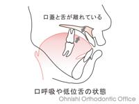 口呼吸や低位舌