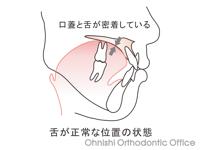 正常な舌位