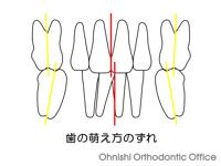 歯の萌え方のずれ