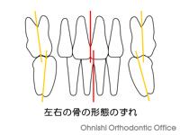 左右の骨の形態のずれ