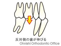 反対側の歯が挺出