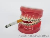 矯正治療とタバコ