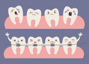 矯正歯科治療の特徴
